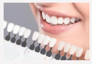 teeth whitening shades perth