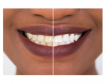 cosmetic teeth whitening perth